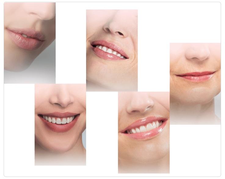 3D Lip